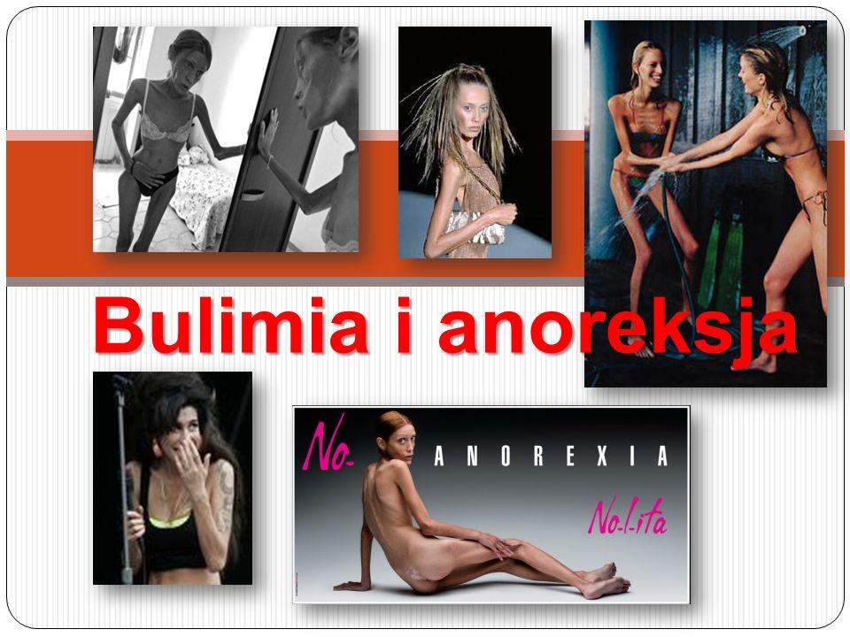 BULIMIA ICD-10 Żarłoczność psychiczna (bulimia nervosa) F50.2 ICD-10 Żarłoczność psychiczna (bulimia nervosa) F50.2 DSM IV Żarłoczność psychiczna (bulimia nervosa) 307.51 DSM IV Żarłoczność psychiczna (bulimia nervosa) 307.51