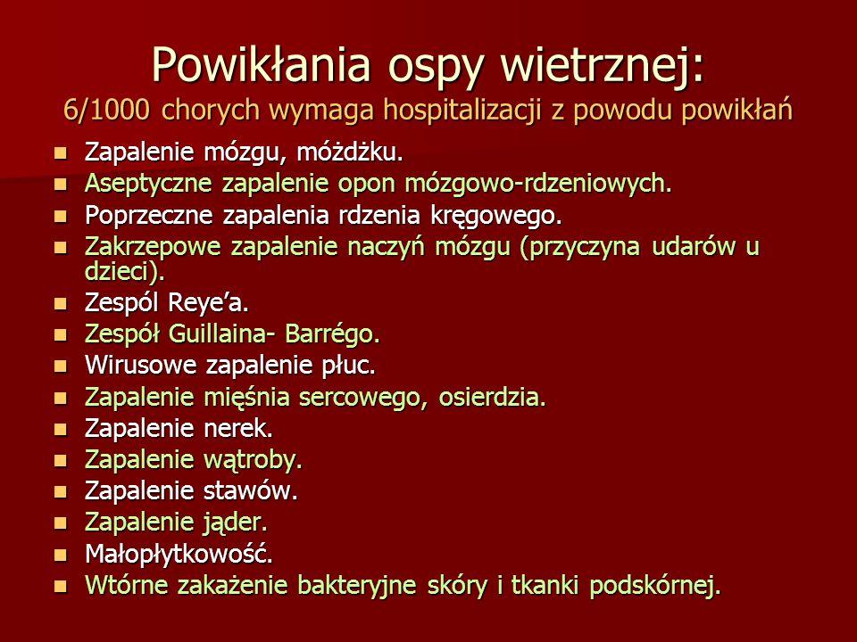 Powikłania ospy wietrznej: 6/1000 chorych wymaga hospitalizacji z powodu powikłań Zapalenie mózgu, móżdżku. Zapalenie mózgu, móżdżku. Aseptyczne zapal