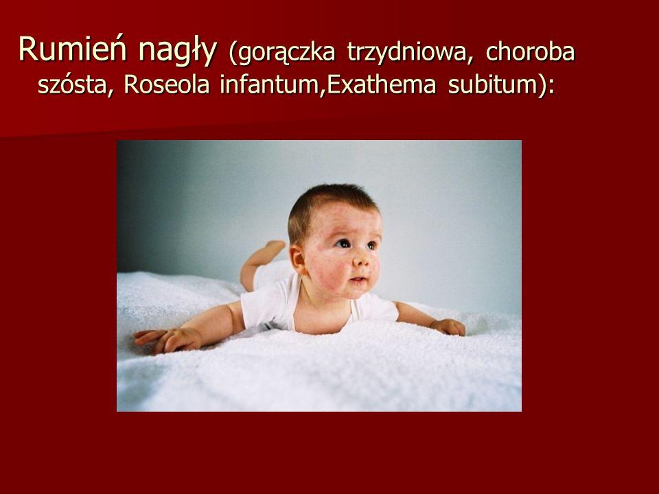Rumień nagły (gorączka trzydniowa, choroba szósta, Roseola infantum,Exathema subitum):