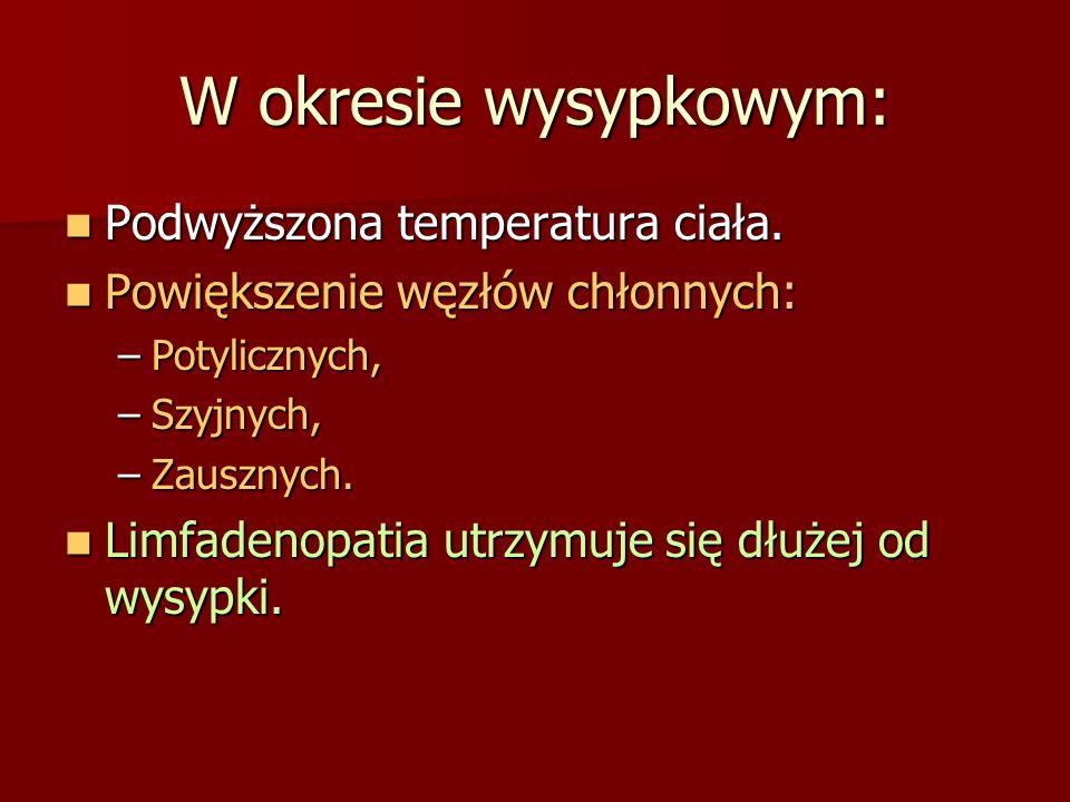 W okresie wysypkowym: Podwyższona temperatura ciała. Podwyższona temperatura ciała. Powiększenie węzłów chłonnych: Powiększenie węzłów chłonnych: –Pot