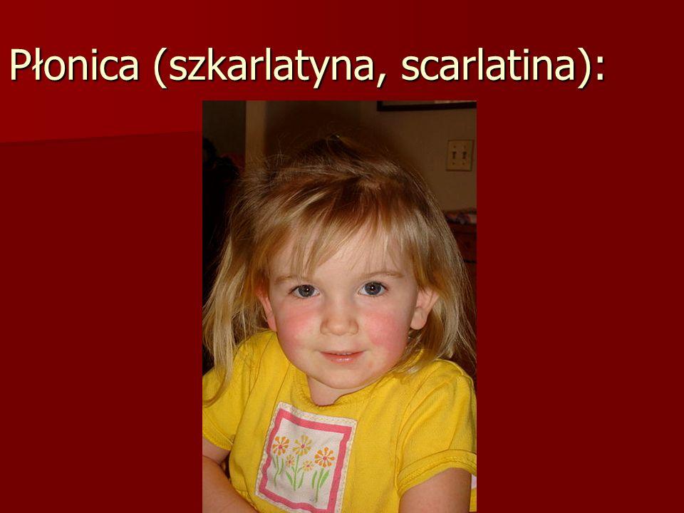 Płonica (szkarlatyna, scarlatina):