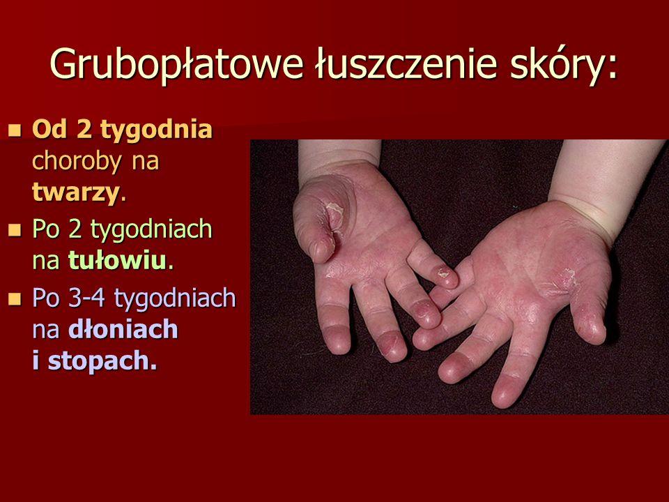 Grubopłatowe łuszczenie skóry: Od 2 tygodnia choroby na twarzy. Od 2 tygodnia choroby na twarzy. Po 2 tygodniach na tułowiu. Po 2 tygodniach na tułowi