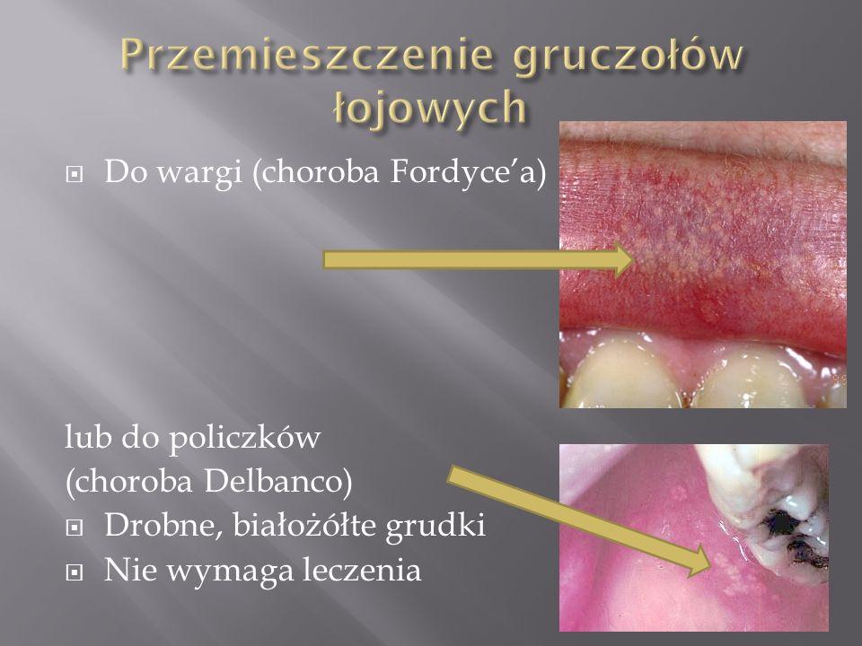 Do wargi (choroba Fordycea) lub do policzków (choroba Delbanco) Drobne, białożółte grudki Nie wymaga leczenia