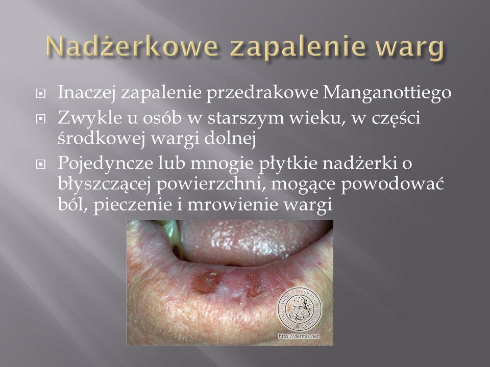 Inaczej zapalenie przedrakowe Manganottiego Zwykle u osób w starszym wieku, w części środkowej wargi dolnej Pojedyncze lub mnogie płytkie nadżerki o b