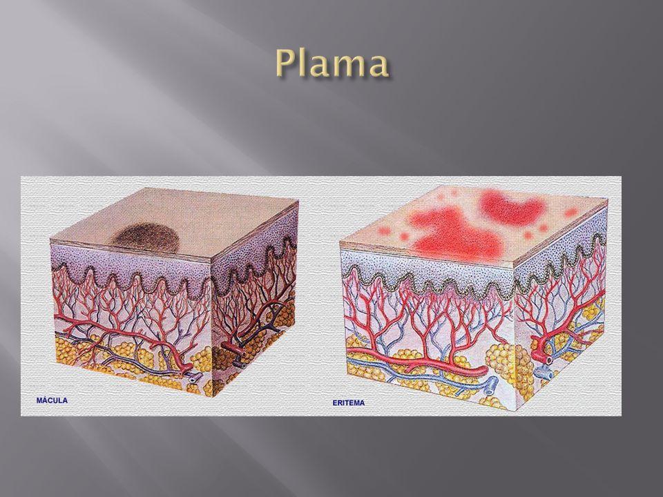 Pęknięcia w kątach ust powodujące dolegliwości przy otwieraniu Przyczyny: infekcje grzybicze lub bakteryjne, niedobór witamin z grupy B (zwłaszcza B 2 lub B 12, niedobór żelaza), może być objawem celiakii, cukrzycy lub zespołu Plummer- Vinsona