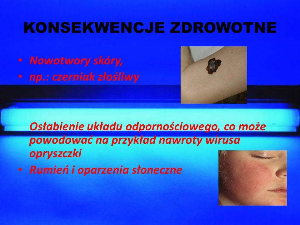 KONSEKWENCJE ZDROWOTNE Nowotwory skóry, np.: czerniak złośliwy Osłabienie układu odpornościowego, co może powodować na przykład nawroty wirusa opryszc