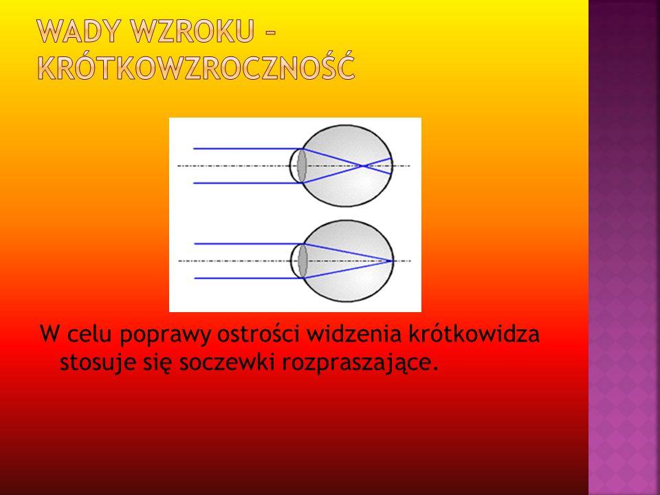 W celu poprawy ostrości widzenia krótkowidza stosuje się soczewki rozpraszające.