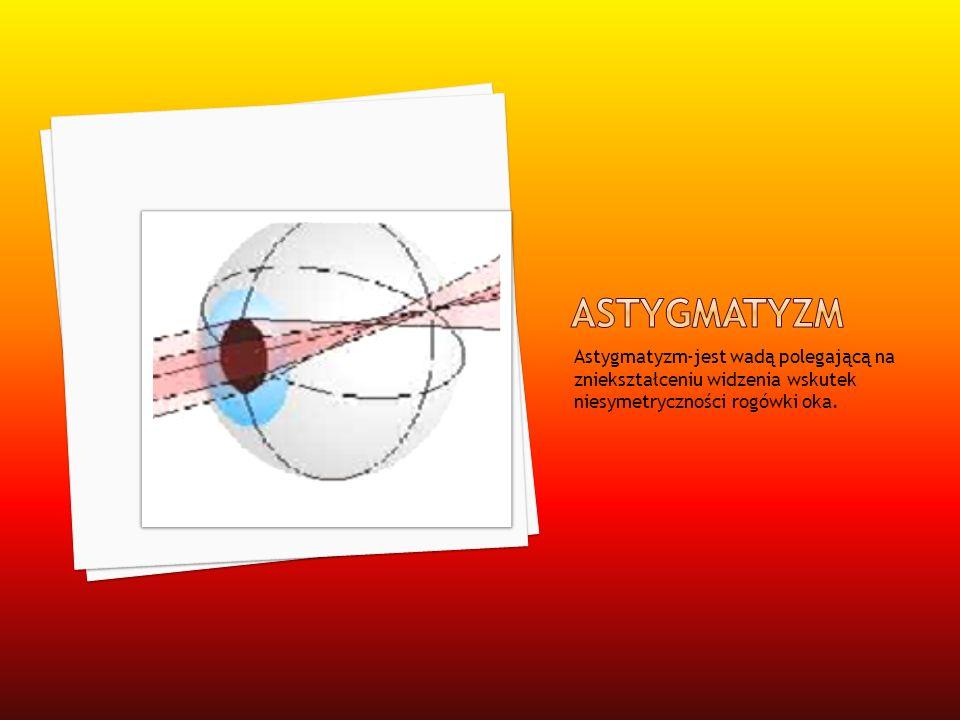 Astygmatyzm-jest wadą polegającą na zniekształceniu widzenia wskutek niesymetryczności rogówki oka.