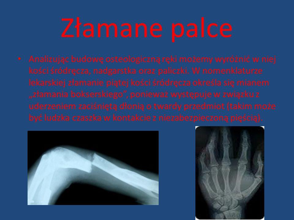 Złamane palce Analizując budowę osteologiczną ręki możemy wyróżnić w niej kości śródręcza, nadgarstka oraz paliczki. W nomenklaturze lekarskiej złaman