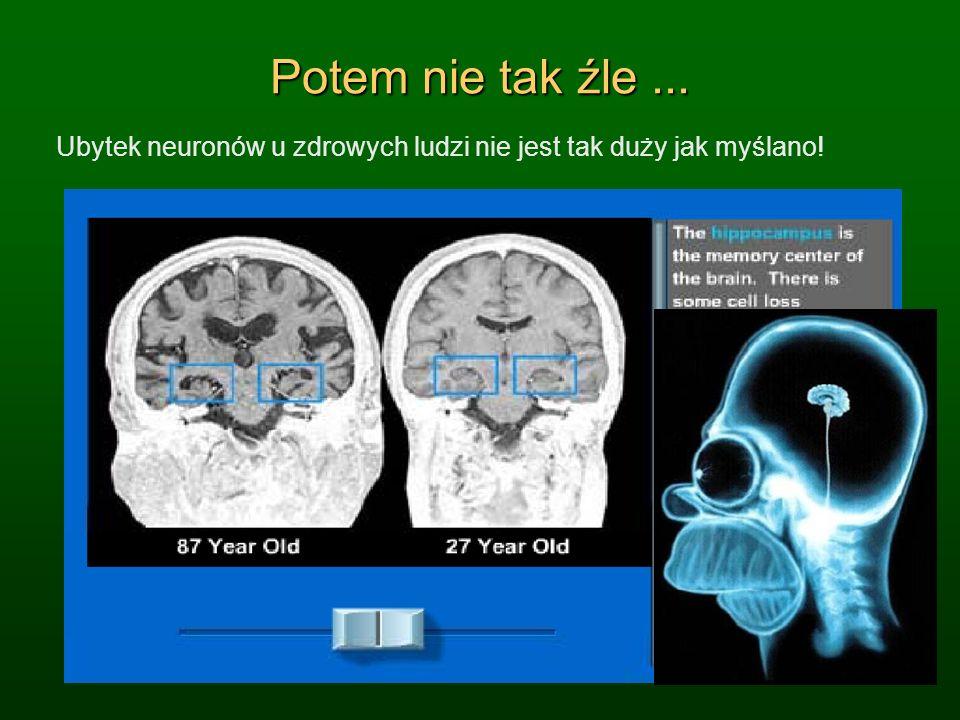 Potem nie tak źle... Ubytek neuronów u zdrowych ludzi nie jest tak duży jak myślano!