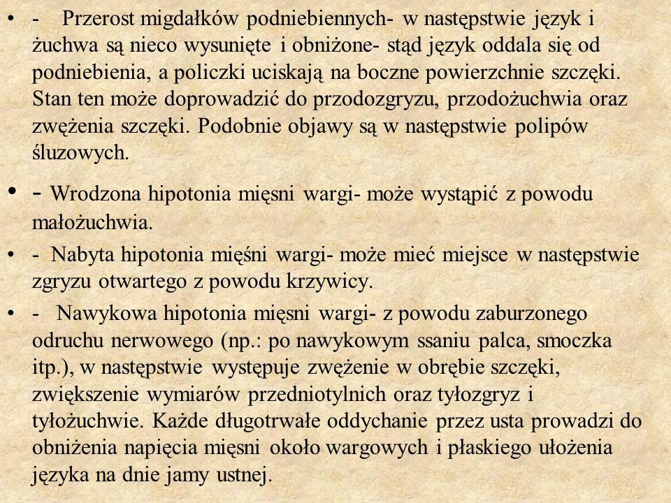 - Przerost migdałków podniebiennych- w następstwie język i żuchwa są nieco wysunięte i obniżone- stąd język oddala się od podniebienia, a policzki uci