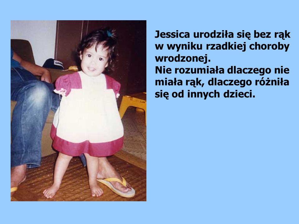Jessica urodziła się bez rąk w wyniku rzadkiej choroby wrodzonej.