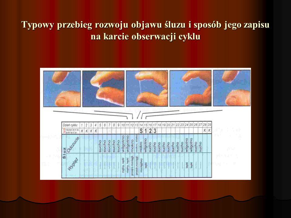 Typowy przebieg rozwoju objawu śluzu i sposób jego zapisu na karcie obserwacji cyklu Typowy przebieg rozwoju objawu śluzu i sposób jego zapisu na karc