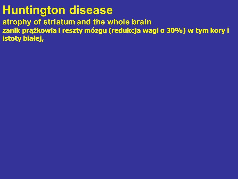 Huntington disease atrophy of striatum and the whole brain zanik prążkowia i reszty mózgu (redukcja wagi o 30%) w tym kory i istoty białej,