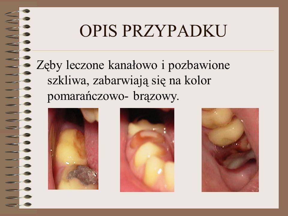 OPIS PRZYPADKU Zęby leczone kanałowo i pozbawione szkliwa, zabarwiają się na kolor pomarańczowo- brązowy.