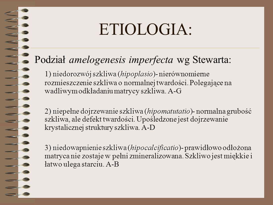 ETIOLOGIA: Podział amelogenesis imperfecta wg Stewarta: niedorozwój szkliwa (hipoplasio)- 1) niedorozwój szkliwa (hipoplasio)- nierównomierne rozmiesz