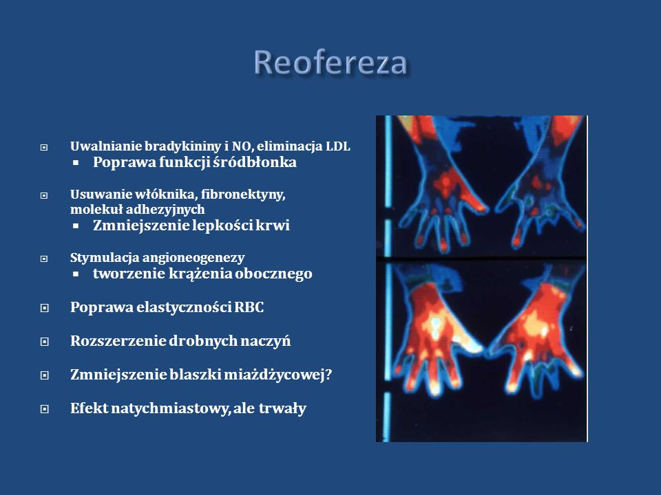 Uwalnianie bradykininy i NO, eliminacja LDL Poprawa funkcji śródbłonka Usuwanie włóknika, fibronektyny, molekuł adhezyjnych Zmniejszenie lepkości krwi Stymulacja angioneogenezy tworzenie krążenia obocznego Poprawa elastyczności RBC Rozszerzenie drobnych naczyń Zmniejszenie blaszki miażdżycowej.