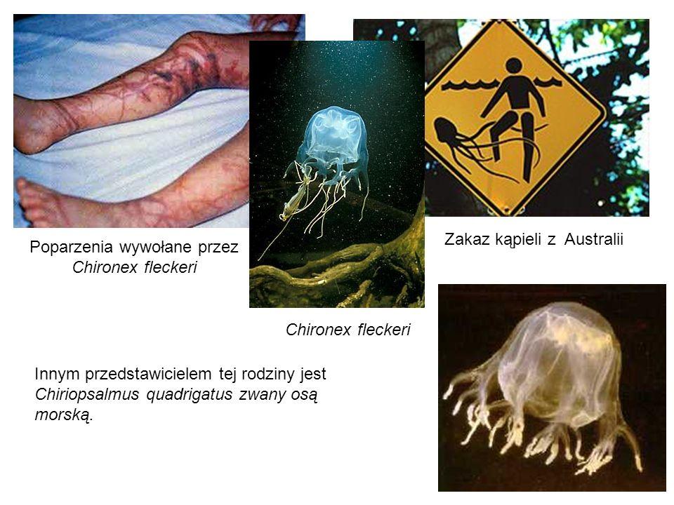 Zakaz kąpieli z Australii Chironex fleckeri Poparzenia wywołane przez Chironex fleckeri Innym przedstawicielem tej rodziny jest Chiriopsalmus quadriga