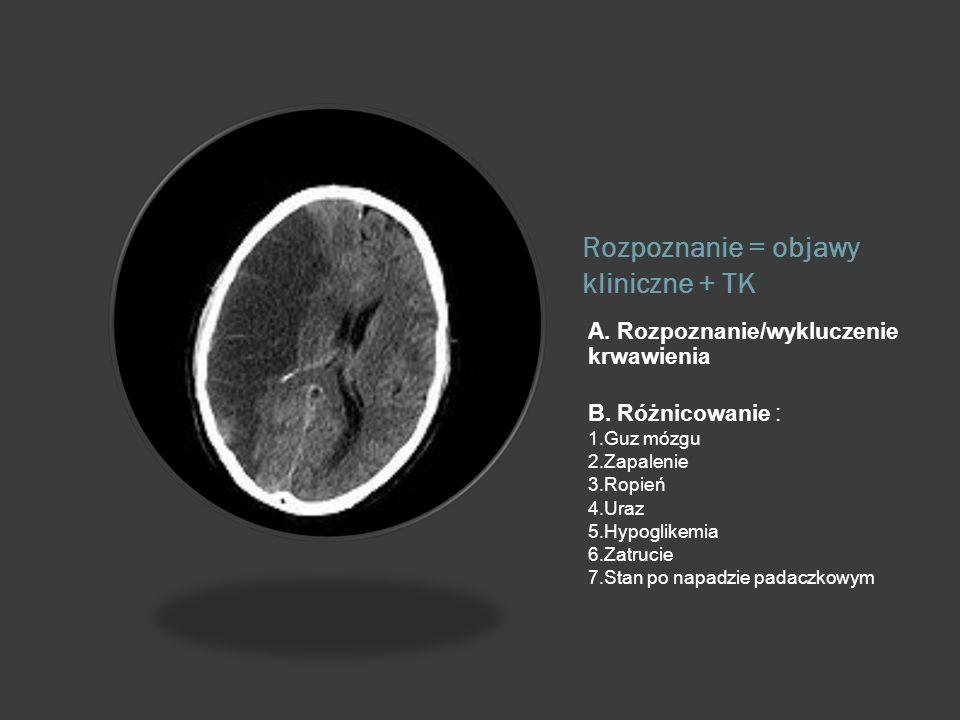 Rozpoznanie = objawy kliniczne + TK A. Rozpoznanie/wykluczenie krwawienia B. Różnicowanie : 1.Guz mózgu 2.Zapalenie 3.Ropień 4.Uraz 5.Hypoglikemia 6.Z