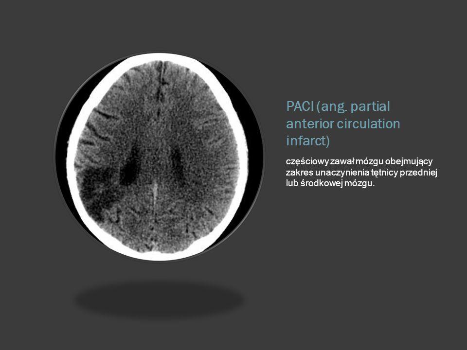 PACI (ang. partial anterior circulation infarct) częściowy zawał mózgu obejmujący zakres unaczynienia tętnicy przedniej lub środkowej mózgu.