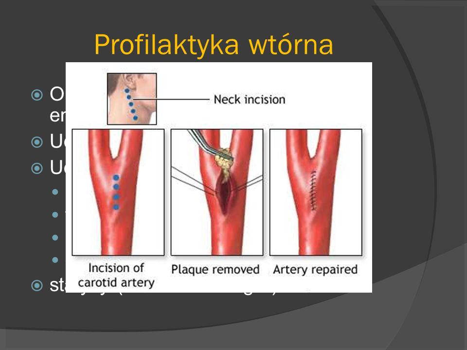 Profilaktyka wtórna Objawowe zwężenie ICA>70%- endarterektomia Udar kardiogenny – antykoagulanty Udar miażdżycowo- zakrzepowy: aspiryna tiklopidyna kl