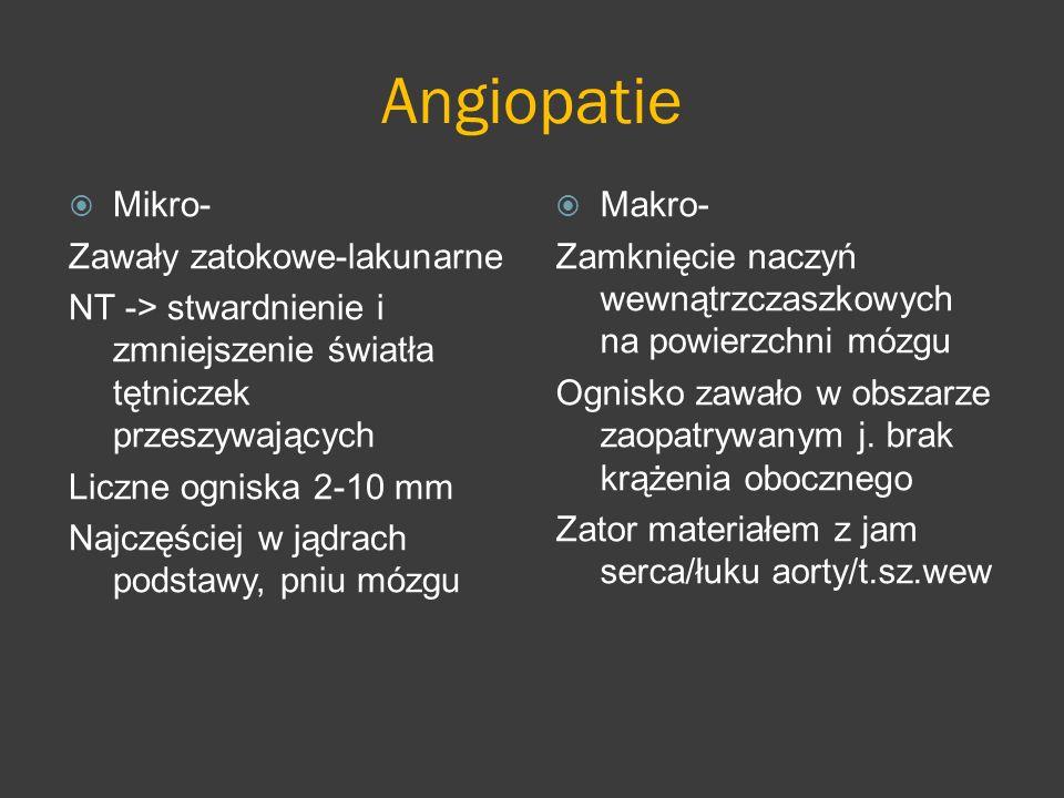 Angiopatie Mikro- Zawały zatokowe-lakunarne NT -> stwardnienie i zmniejszenie światła tętniczek przeszywających Liczne ogniska 2-10 mm Najczęściej w j