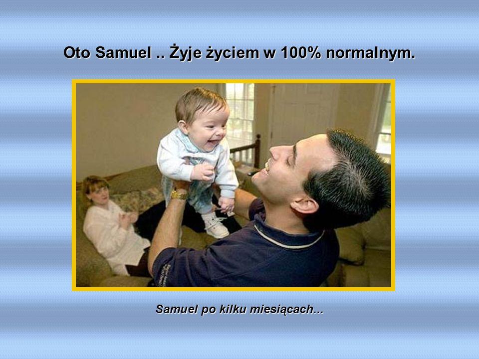 Samuel po kilku miesiącach... Oto Samuel.. Żyje życiem w 100% normalnym.