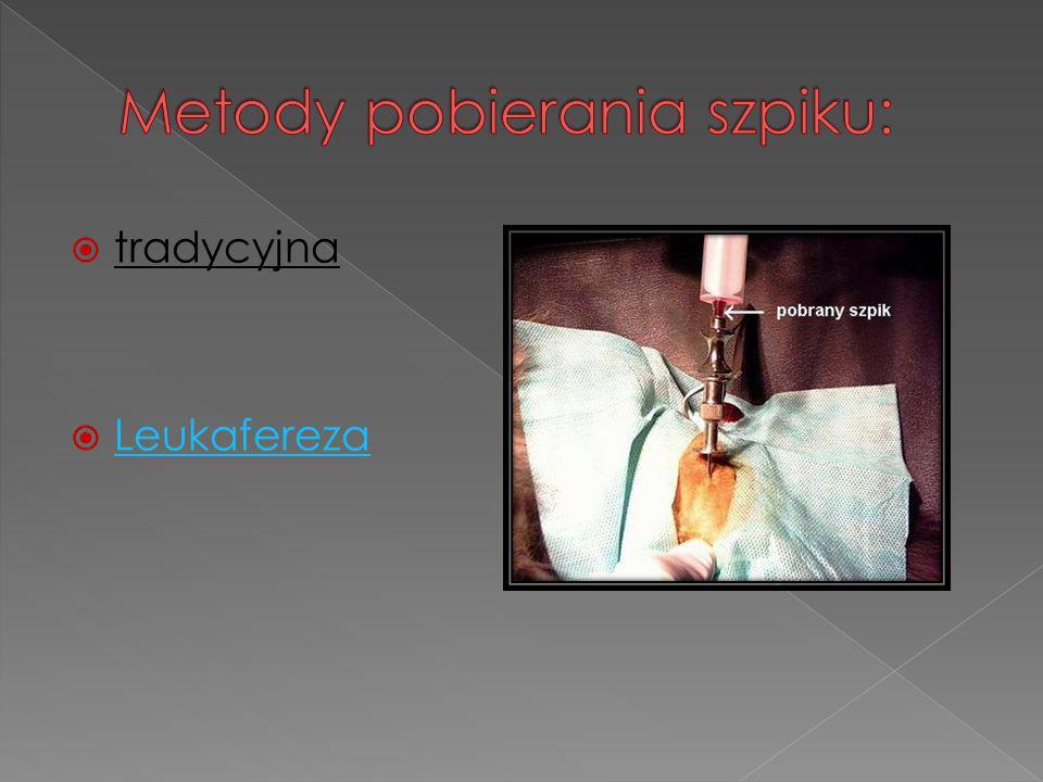 - W Polsce zarejestrowanych jest około 35 000osób, -w Wielkiej Brytanii około 680 000, -w Niemczech aż 3 000 000.