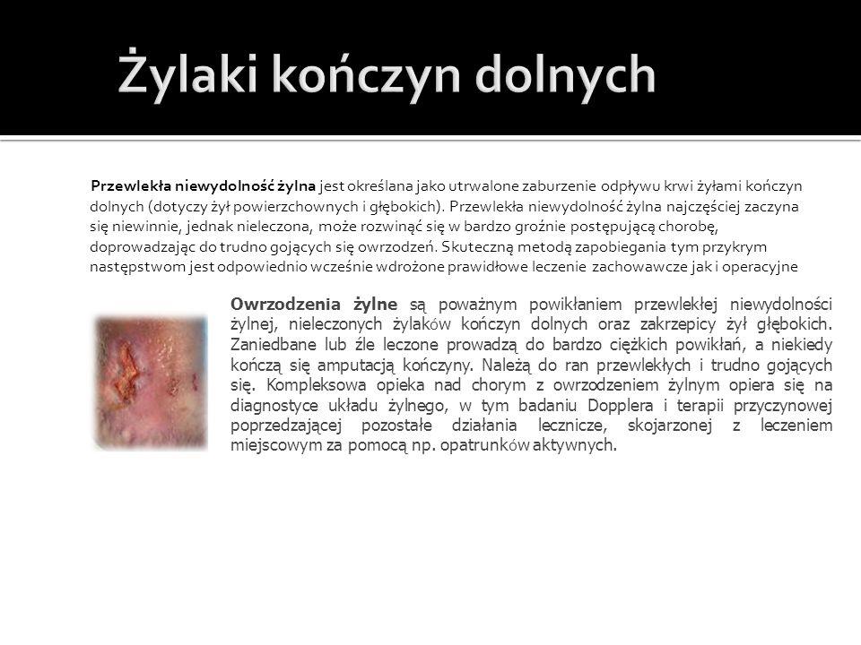 Przewlekła niewydolność żylna jest określana jako utrwalone zaburzenie odpływu krwi żyłami kończyn dolnych (dotyczy żył powierzchownych i głębokich).