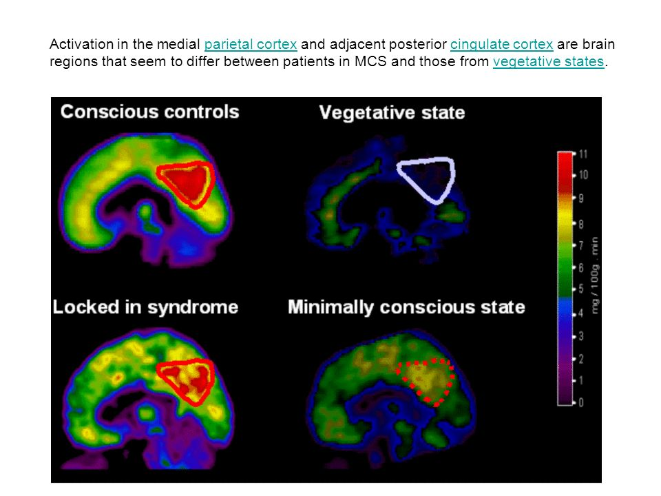 Activation in the medial parietal cortex and adjacent posterior cingulate cortex are brain regions that seem to differ between patients in MCS and tho