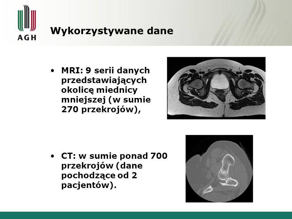 Wyodrębnianie kości udowych z danych CT i MRI.