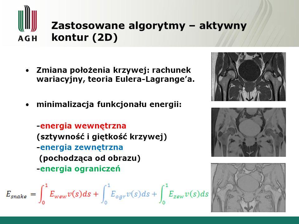 Zastosowane algorytmy – aktywny kontur (2D) – demonstracja