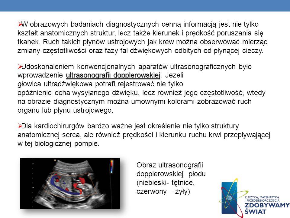 W obrazowych badaniach diagnostycznych cenną informacją jest nie tylko kształt anatomicznych struktur, lecz także kierunek i prędkość poruszania się t