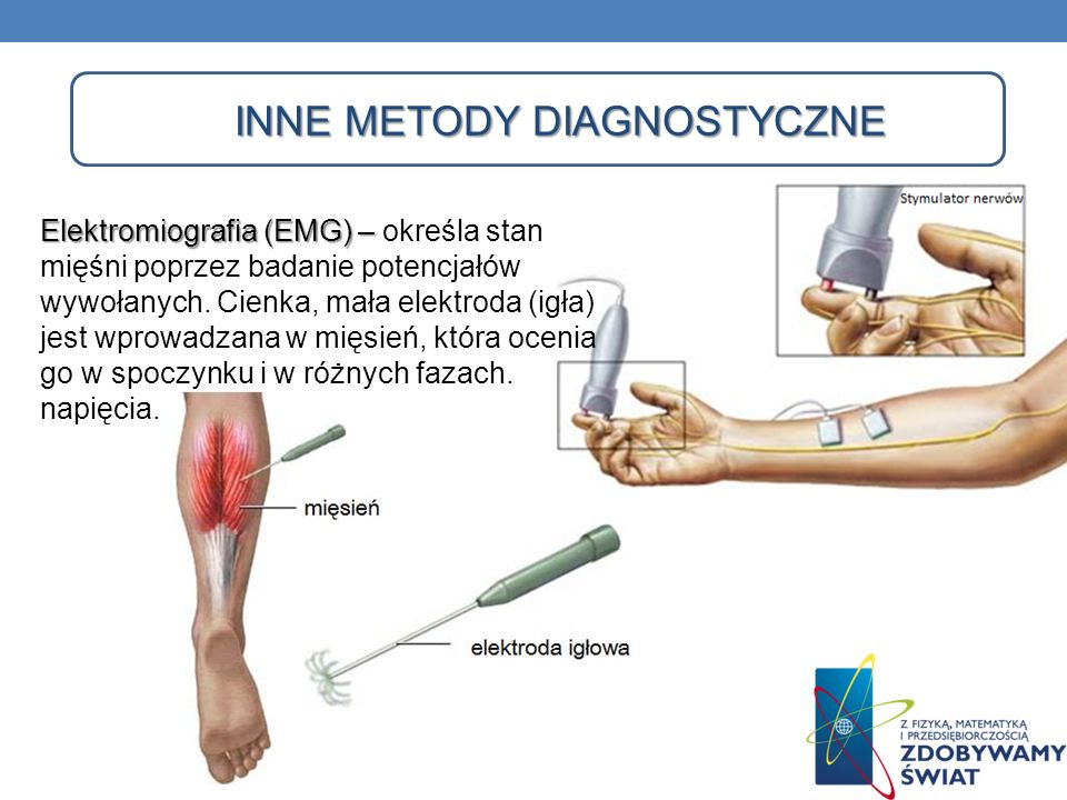 INNE METODY DIAGNOSTYCZNE Elektromiografia (EMG) – Elektromiografia (EMG) – określa stan mięśni poprzez badanie potencjałów wywołanych. Cienka, mała e