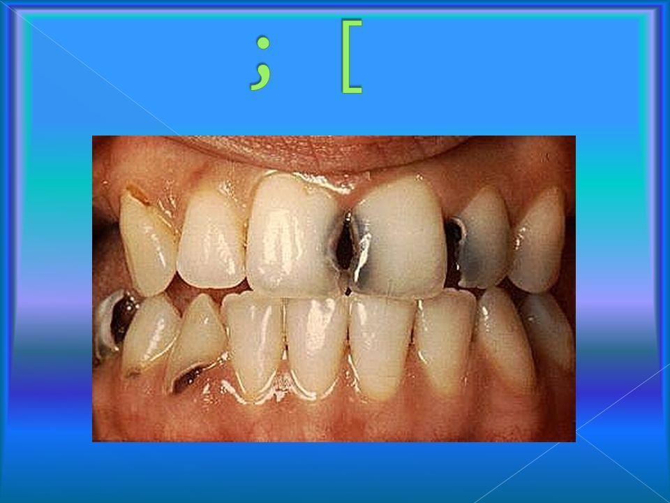 Egzogenny proces polegający na demineralizacji części nieorganicznej i proteolitycznym rozkładzie organicznej twardych tkanek zęba.