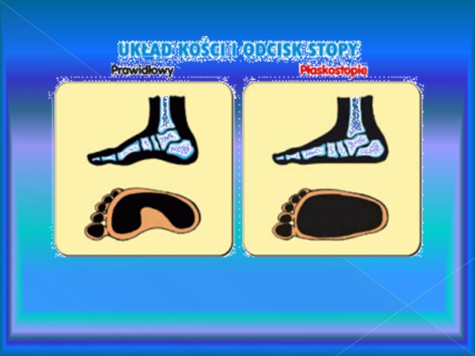 Czym jest płaskostopie? Prawidłowo zbudowana stopa nie przylega ściśle do podłoża, ponieważ posiada dwa łuki, które ją podtrzymują i chronią przed wst