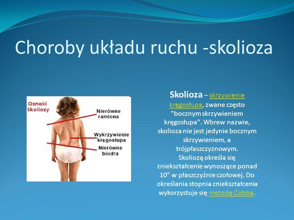 Choroby układu ruchu -skolioza Skolioza – skrzywienie kręgosłupa, zwane często bocznym skrzywieniem kręgosłupa .