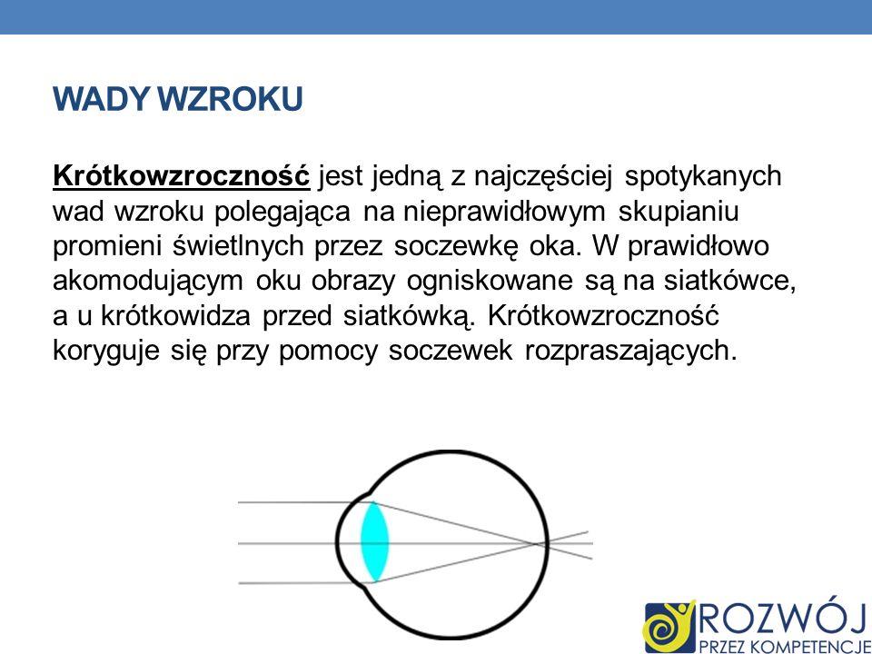 WADY WZROKU Krótkowzroczność jest jedną z najczęściej spotykanych wad wzroku polegająca na nieprawidłowym skupianiu promieni świetlnych przez soczewkę