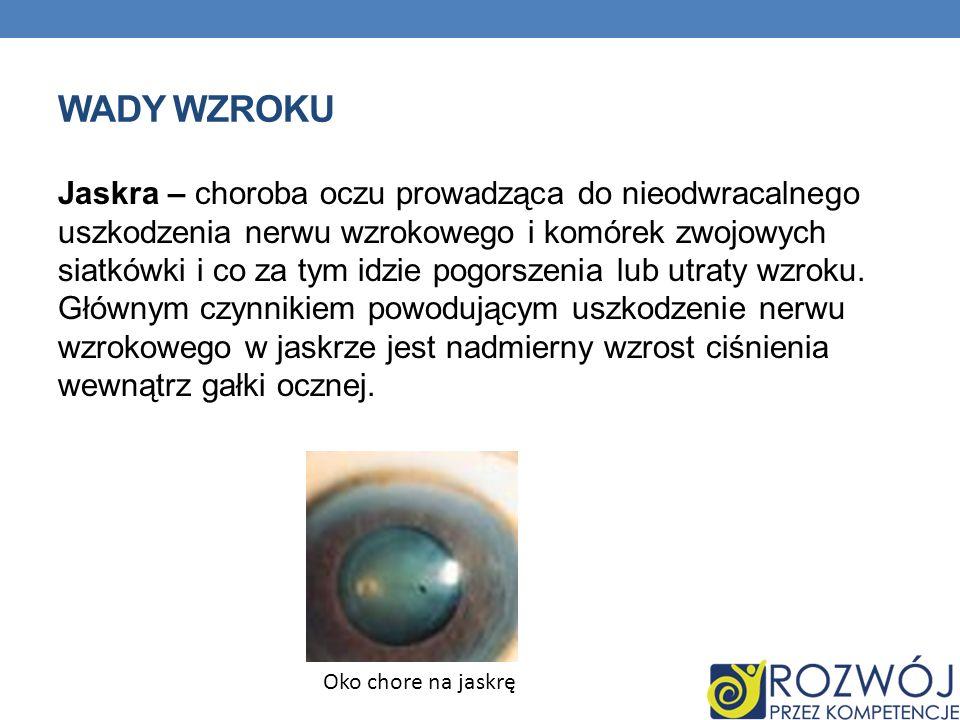 WADY WZROKU Jaskra – choroba oczu prowadząca do nieodwracalnego uszkodzenia nerwu wzrokowego i komórek zwojowych siatkówki i co za tym idzie pogorszen