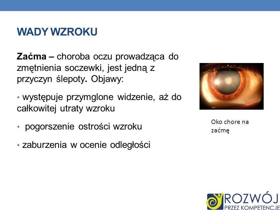 WADY WZROKU Zaćma – choroba oczu prowadząca do zmętnienia soczewki, jest jedną z przyczyn ślepoty. Objawy: występuje przymglone widzenie, aż do całkow