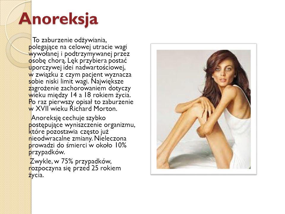 Anoreksja To zaburzenie odżywiania, polegające na celowej utracie wagi wywołanej i podtrzymywanej przez osobę chorą. Lęk przybiera postać uporczywej i