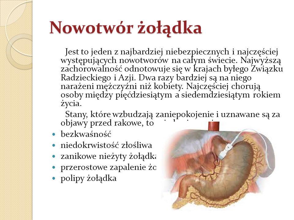 Nowotwór żołądka Jest to jeden z najbardziej niebezpiecznych i najczęściej występujących nowotworów na całym świecie. Najwyższą zachorowalność odnotow