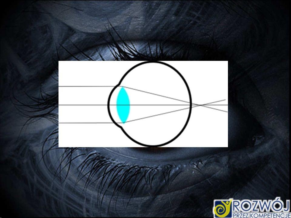 Inną wadą jest krótkowzroczność.W oku z taką wadą obraz powstaje przed siatkówką.