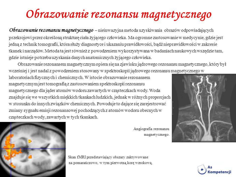 Obrazowanie rezonansu magnetycznego Obrazowanie rezonansu magnetycznego – nieinwazyjna metoda uzyskiwania obrazów odpowiadających przekrojowi przez ok