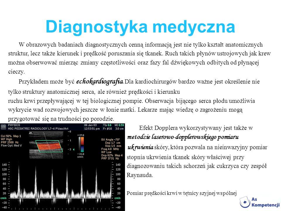 Diagnostyka medyczna W obrazowych badaniach diagnostycznych cenną informacją jest nie tylko kształt anatomicznych struktur, lecz także kierunek i pręd