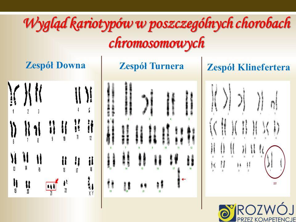 Zespół Downa Zespół Turnera Zespół Klinefertera Wygląd kariotypów w poszczególnych chorobach chromosomowych