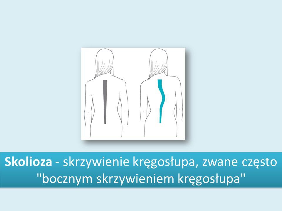 Skolioza - skrzywienie kręgosłupa, zwane często