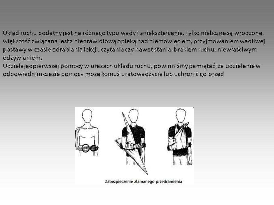 Układ ruchu podatny jest na różnego typu wady i zniekształcenia. Tylko nieliczne są wrodzone, większość związana jest z nieprawidłową opieką nad niemo