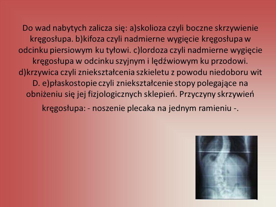Do wad nabytych zalicza się: a)skolioza czyli boczne skrzywienie kręgosłupa. b)kifoza czyli nadmierne wygięcie kręgosłupa w odcinku piersiowym ku tyło