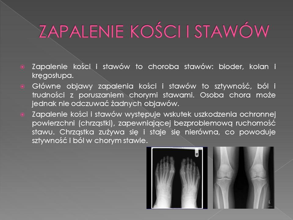 Zapalenie kości i stawów to choroba stawów: bioder, kolan i kręgosłupa. Główne objawy zapalenia kości i stawów to sztywność, ból i trudności z porusza